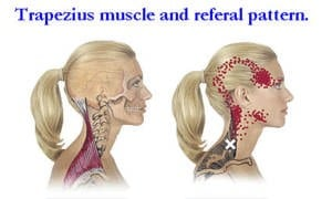 tension headaches and why your neck muscles may be